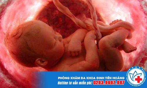 Nguyên nhân và dấu hiệu nhận biết thai chết lưu là gì