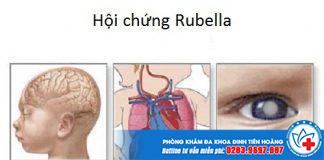 Một số tác hại của việc nhiễm Rubella khi mang thai