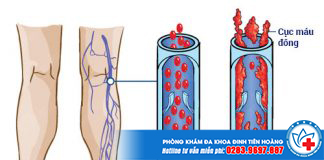Chứng huyết khối tĩnh mạch trong thai kỳ