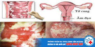 Hậu quả phá thai không an toàn tại nhà