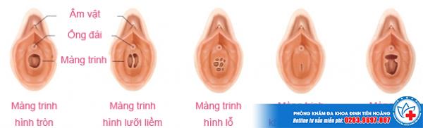 Minh họa hình ảnh màng trinh của con gái như thế nào