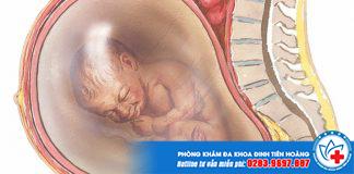Hiện tượng đa ối khi mang thai