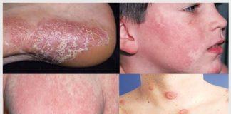 Nổi ban đỏ trên da là gì? Nguyên nhân và cách chữa trị
