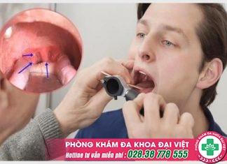 Sùi mào gà ở họng – Hình ảnh nhận biết và cách chữa trị