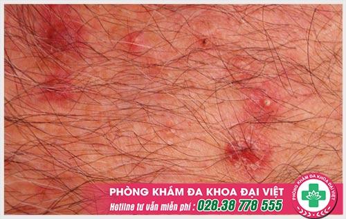 Nữ giới cần cảnh giác khi bị ngứa lông mu vào ban đêm
