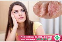 Bệnh sùi mào gà ở nữ giới và cách hỗ trợ điều trị hiệu quả