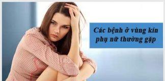 Các bệnh ở vùng kín phụ nữ thường gặp và cách phòng tránh