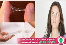 Huyết trắng ra nhiều có phải có thai không? Dấu hiệu thai kỳ