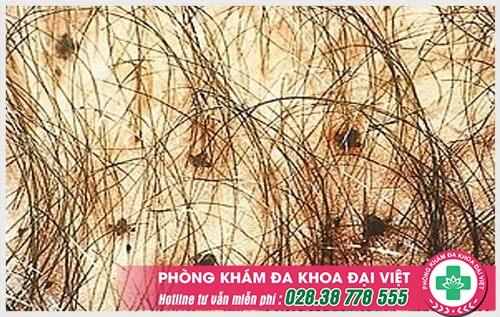Ngứa vùng lông mu ở nam giới nguyên nhân do đâu? Dấu hiệu cảnh giác