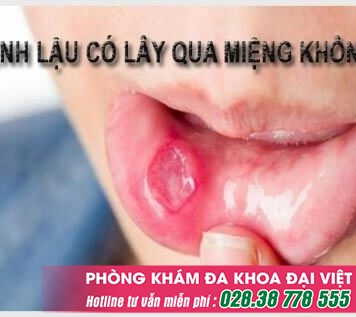 Bệnh lậu có lây qua đường miệng không và triệu chứng chính xác