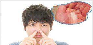Vì sao tinh trùng có mùi hôi? Cách điều trị hiệu quả nhất