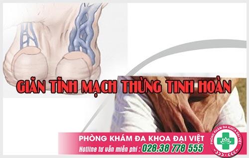 Những nguy hiểm khi nam giới bị giãn tĩnh mạch thừng tinh hoàn