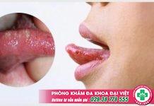 Hiện tượng lưỡi xuất hiện đốm đỏ là bị gì và cách xử lý an toàn