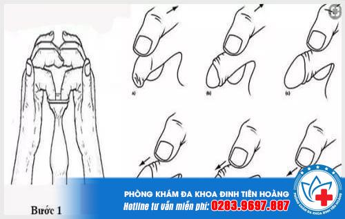 Bật mí 2 cách chữa hẹp bao quy đầu không cần phẫu thuật