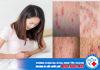Đau xương mu vùng kín là dấu hiệu bệnh gì? Các bệnh phụ nữ nguy hiểm