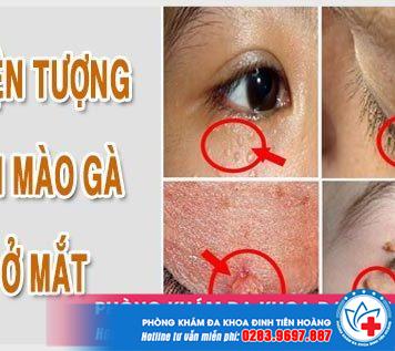 hien-tuong-sui-mao-ga-o-mat-1