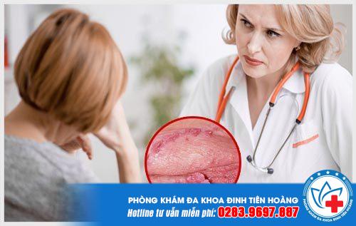 Sùi mào gà ở cổ tử cung có thể biến chứng thành ung thư, đe dọa tính mạng.