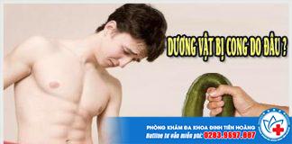 duong-vat-bi-cong