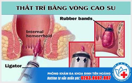 tha-tri-bang-vong-cao-su