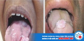 Tư vấn cách chữa lưỡi nổi mụn thịt không đau tại nhà