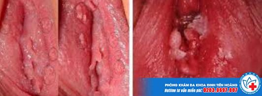 Hình ảnh thực tế mụn gai sinh dục bệnh lý