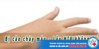 Bị cào chảy máu tay có lây bệnh HIV không