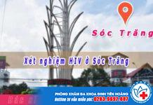 Trung Tâm Xét Nghiệm HIV ở Sóc Trăng