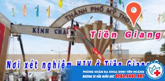 xét nghiệm HIV ở Tiền Giang